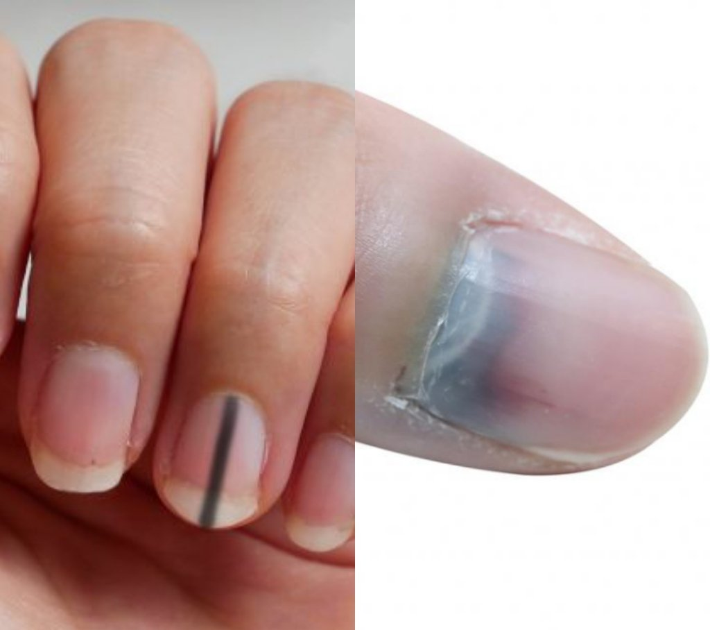 Do You Know Having Black Lines On Your Nails Can Kill? 2 » Best Tech News, Gadgets, FinTech and Telco news.