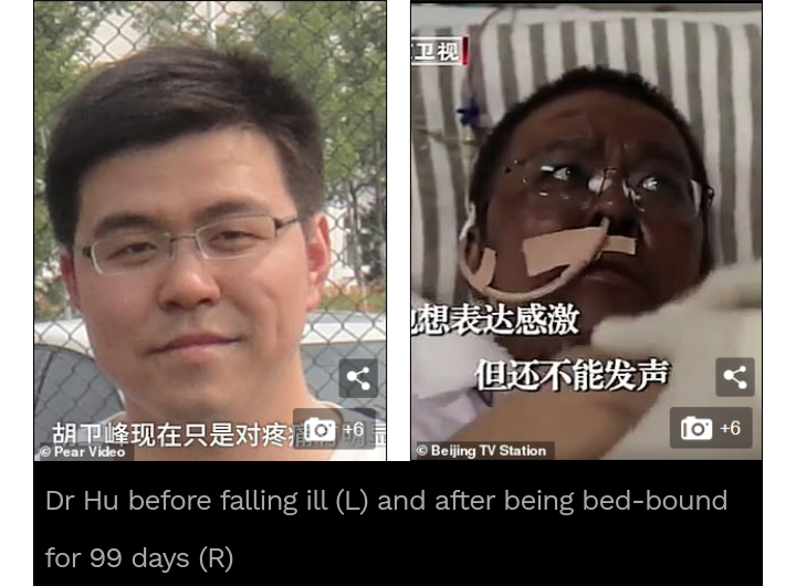 Chinese Doctors' Skin Turn Black After Treatment. 2 - Globecalls.com is a 24/7 Entertainment News Outlet In West Africa Serving Its Readers With The Best In Music, News, Events, And World Happenings.