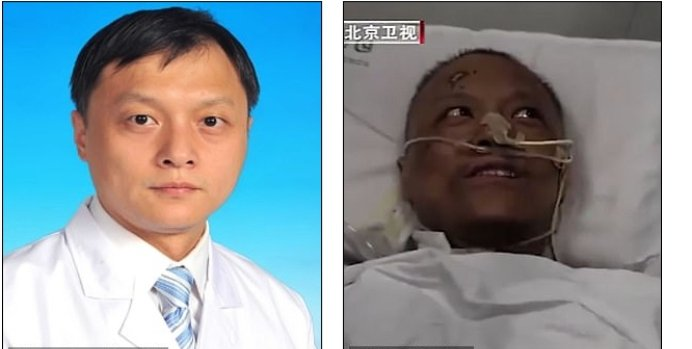 Chinese Doctors' Skin Turn Black After Treatment. 2 » Best Tech News, Gadgets, FinTech and Telco news.