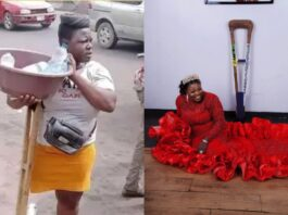 Highly Favoured Amputee Hawker Transforms Into A Top Model