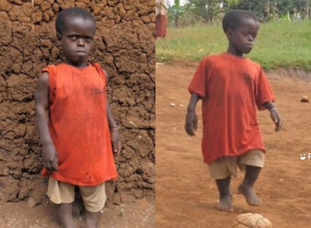 I Wanted To Be A Female Messi But Disability Blocked Me - 20 Years Lady
